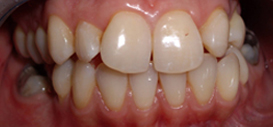 veneers ilford